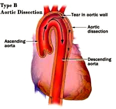 Dissecting aneurysm of the aorta. Internet image.