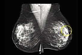Report Us Spending On False Positive Mammograms Breast Cancer